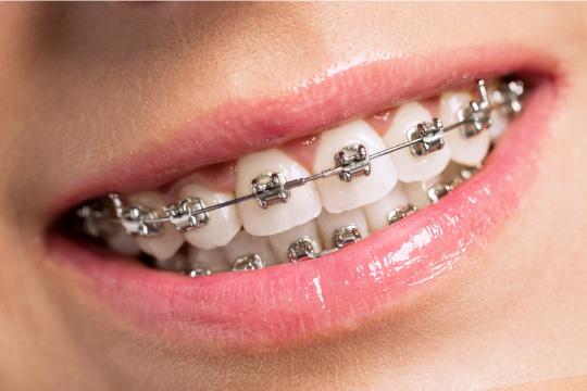 ortodonzia vestibolare