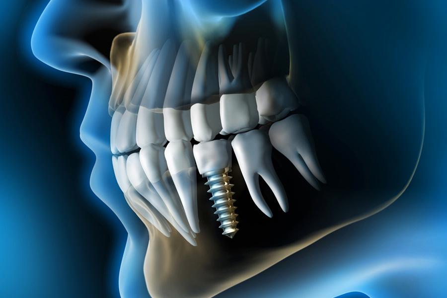 implantologia a carico immediato